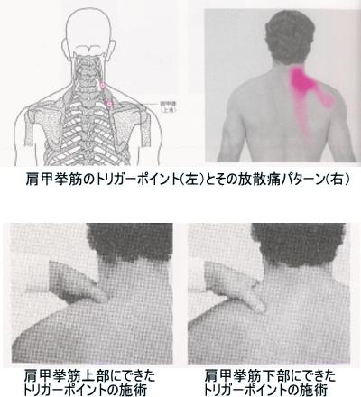 肩甲挙筋のトリガーポイントとその放散痛パターン
