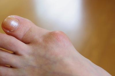 外反母趾による変形