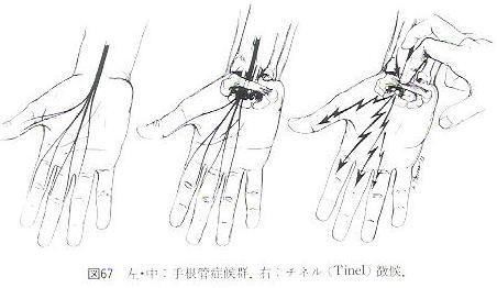 手根管症候群とチネル徴候