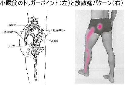 小殿筋のトリガーポイントと放散痛パターン