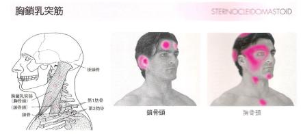 胸鎖乳突筋のトリガーポイントとその放散痛パターン