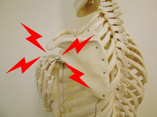五十肩 骨格模型